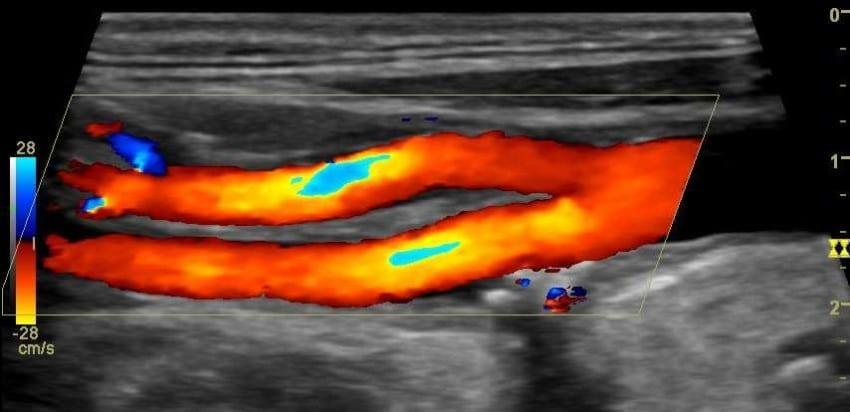Doppler-Duplex-Sonographie gegen Impotenz