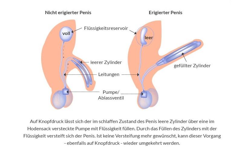 Funktionsweise eines Penisimplantats