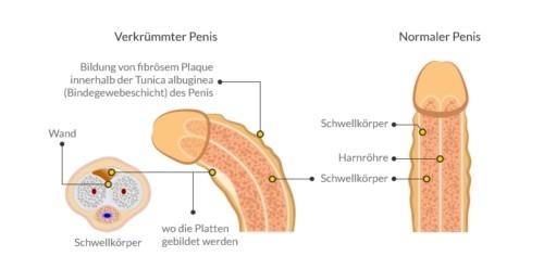 Anatomie einer Penisverkrümmung